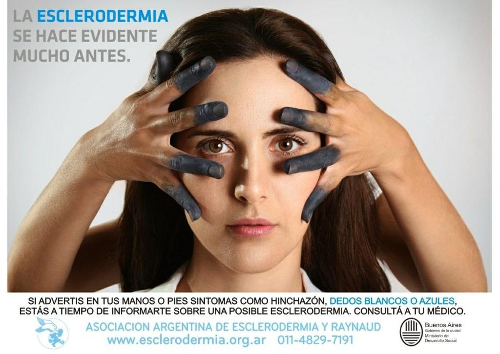 escleodermia1